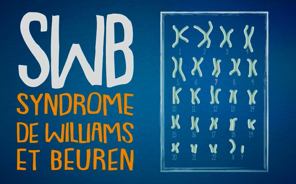 Le syndrome de Williams et Beuren